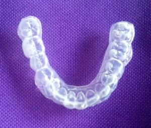 Blanchiment dentaire Gel