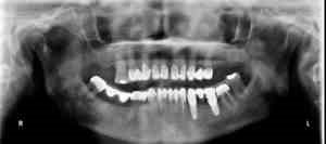 implants dentaires mandibulaires richard amouyal 3