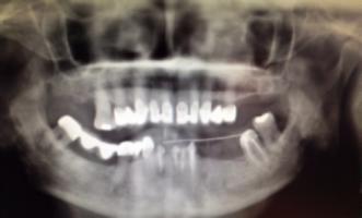 implants dentaires dentiste paris