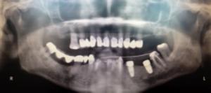 implants dentaires mandibulaires paris 16 dentiste
