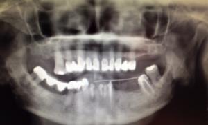 Implants dentaires mandibulaires dentiste amouyal paris 16
