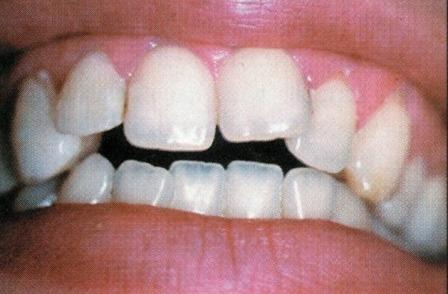 dentiste amouyal paris 16 traitement d 39 une b ance par facette dentaire en c ramique. Black Bedroom Furniture Sets. Home Design Ideas