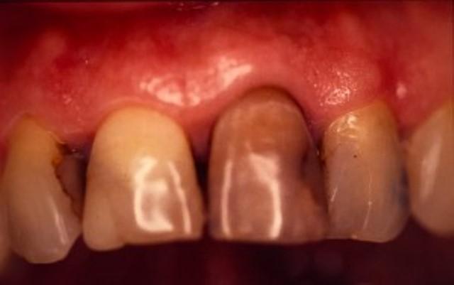 dents jaunes couronnes céramique dentiste richard amouyal