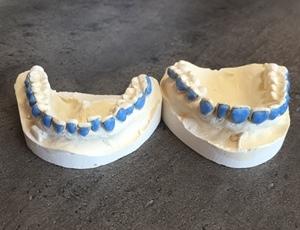 Moules des deux arcades dentaires