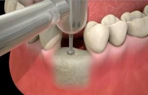 Mise en place de l'implant