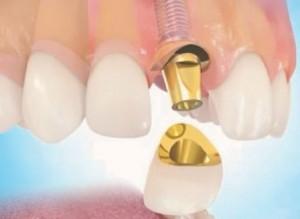 Mise en place de la couronne chez le dentiste amouyal
