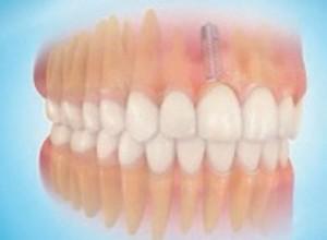 Prothèse dentaire terminée à paris dans le cabinet dentaire richard amouyal