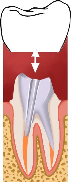 Couronne dentaire facette