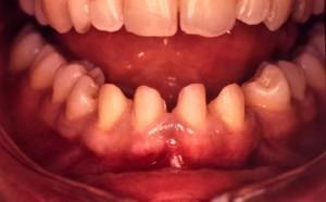 Correction d'espace par facette dentaire