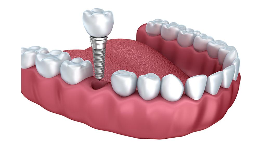 Implant dentaire dentiste richard amouyal Paris 16
