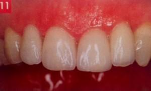 Bonne intégration des facettes dentaires