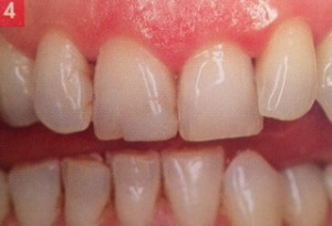Composites inésthétiques remplacées par facettes dentaires