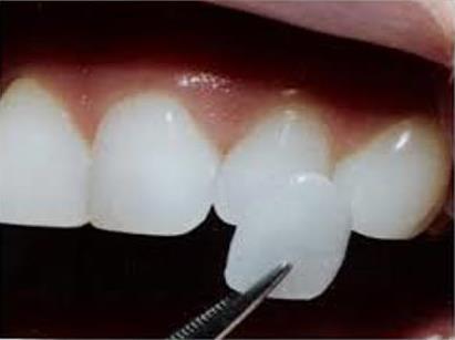 Dentiste Amouyal à Paris 16 | La pose de facettes dentaires à Paris