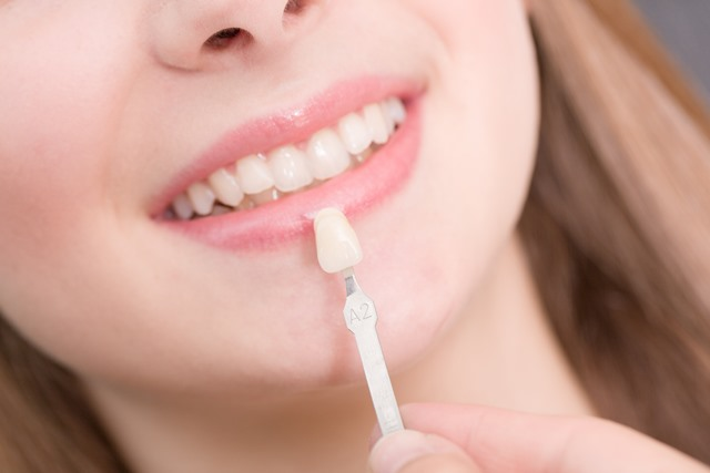 Facettes dentaires et malpositions dentiste richard amouyal Paris 16