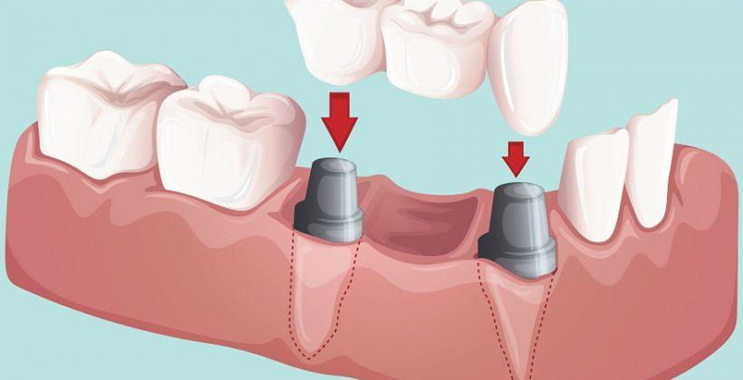 Pose bridge dentaire dentiste richard amouyal