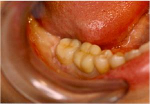 Séance clinique inlay onlay dentiste paris 16