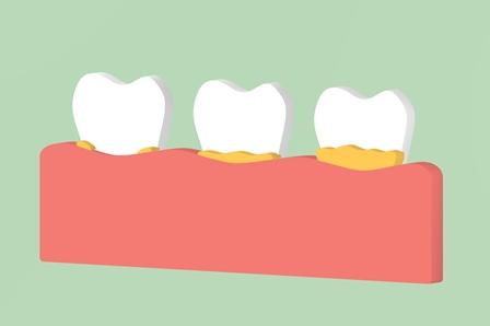 La plaque dentaire dentiste Amouyal