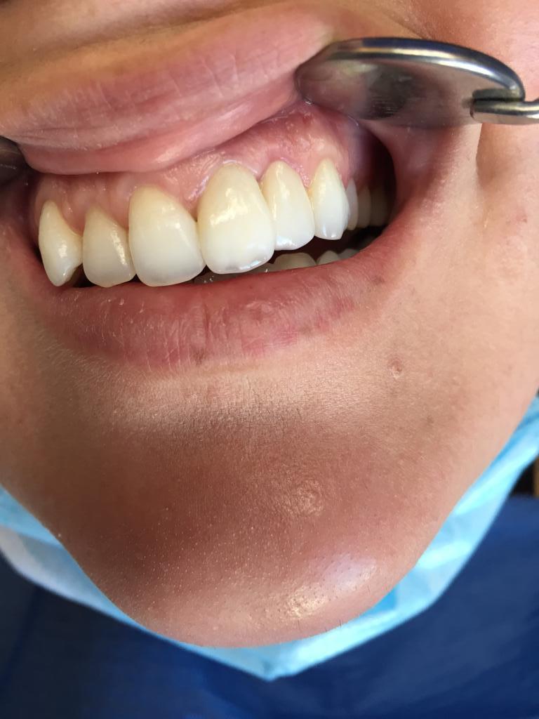 Traitement esthétique gingivectomie